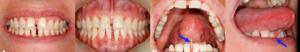 Soins d'orthodontie suite à un frein de langue