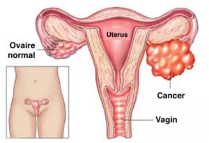 Cancer des ovaires et allaiter